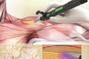 ساخت پرینتر سه بعدی برای ترمیم ماهیچه های بدن